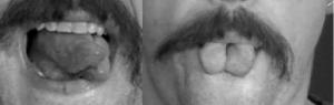 Bifurcated Tongue